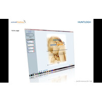 FetalCare3 Software Καρδιοτοκογράφων Huntleigh