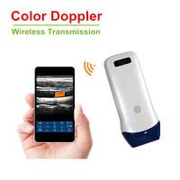 Ασύρματος Υπέρηχος Linear Color Doppler