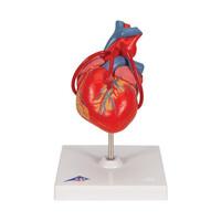 Πρόπλασμα Καρδιάς με Bypass