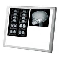 Διαφανοσκόπιο MIMSAL AF 200 LED SLIM