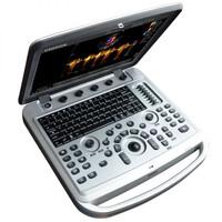 Έγχρωμος Φορητός Υπέρηχος Chison Sonobook 6