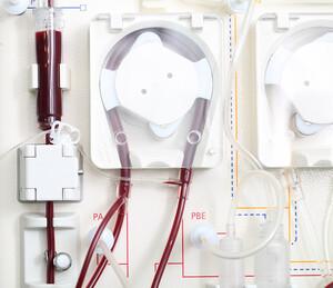 Σωστές Ρυθμίσεις Αιμοκάθαρσης με seca mBCA