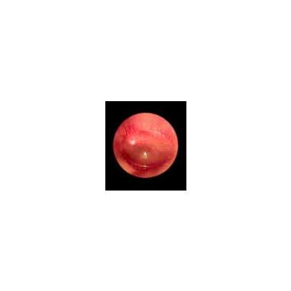 Ωτοσκόπιο Οπτικών Ινών HEINE mini®3000 (F.O.)