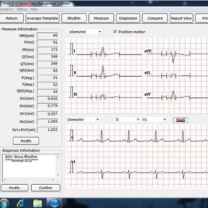 Λογισμικό EDAN Smart ECG-Viewer