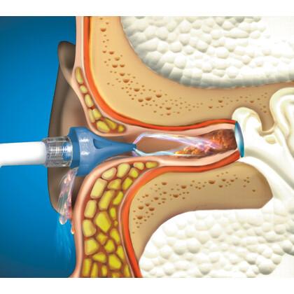 Συσκευή Πλύσεως Αυτιών OtoClear