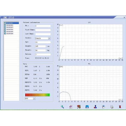 Σπιρόμετρο Contec SP-10